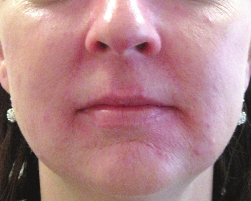 Rosacea removal - after